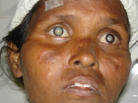 Blind--White cataract in both eyes